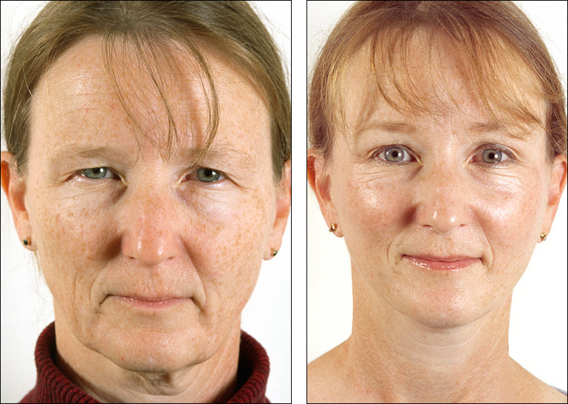 Dr  Steven Denenberg's facial plastic surgery before and afters