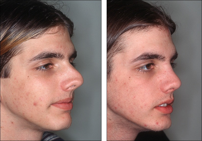 Facial reconstruction before and after pics 147