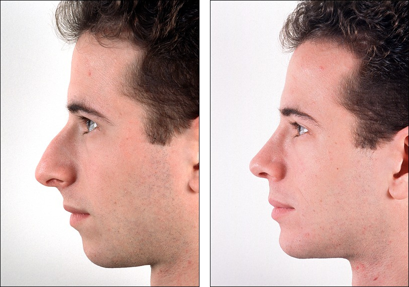how to make your nose look shorter
