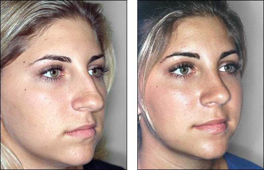 Dr Steven Denenberg S Facial Plastic Surgery Before And
